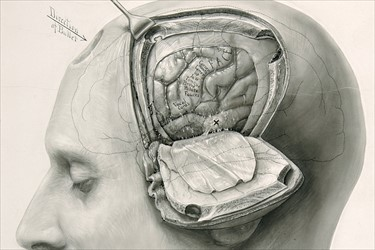 Best & Top Neurosurgeon In India   Best Spine Surgeon In